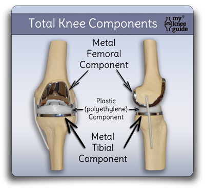 total_knee_replacement_components_model