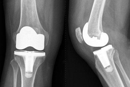 Knee X-ray image after a total knee replacement operation. The diseased knee joint is replaced with artificial material (White parts). Frontal view and side-view.