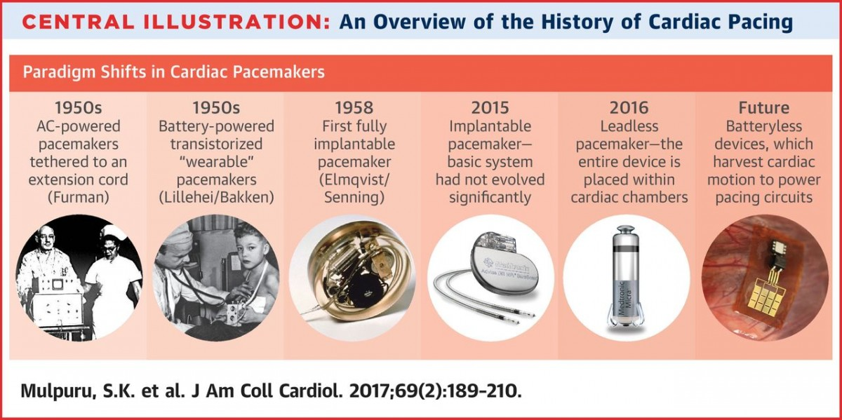 pacemaker history