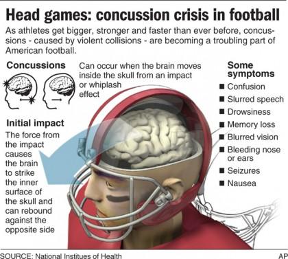 concussions2