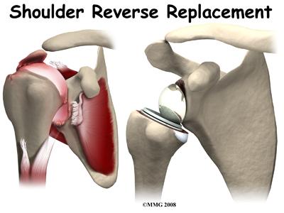 shoulder_reverse_intro01