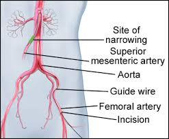 stent3
